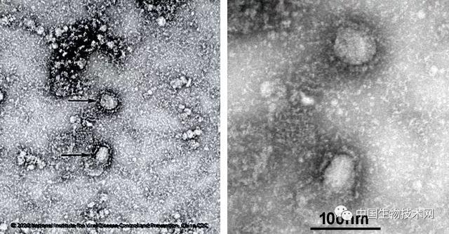 高福团队在《新英格兰医学杂志》发表新型冠状病毒论文